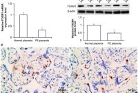 Birt Report Templates New Effects Of forkhead Box Protein M1 On Trophoblast Invasion and Its