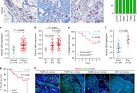 Bug Summary Report Template Unique A Zeb1 P53 Signaling Axis In Stromal Fibroblasts Promotes Mammary