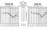 Blank Audiogram Template Download Unique Alport Syndrome Wikipedia