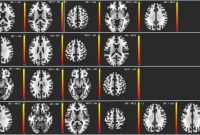 Dl Card Template New Does Resting State Functional Connectivity Differ Between